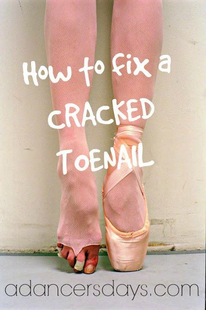how to fix a cracked toenail
