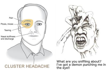 What is a headache?, The four most common types of headache, and can you hurt your brain by thinking too much?
