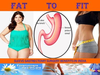 Get Best Price Laparoscopic Sleeve Gastrectomy Surgery in India : Contact Forerunners Healthcare