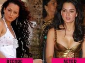 Shocking Celebrity Plastic Surgery Transformations