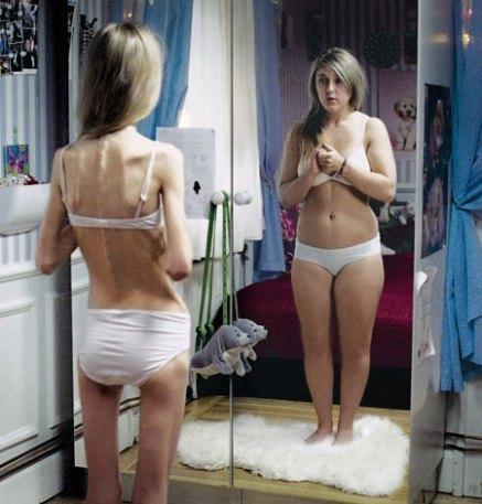 body-dysmorphic-disorder.jpg