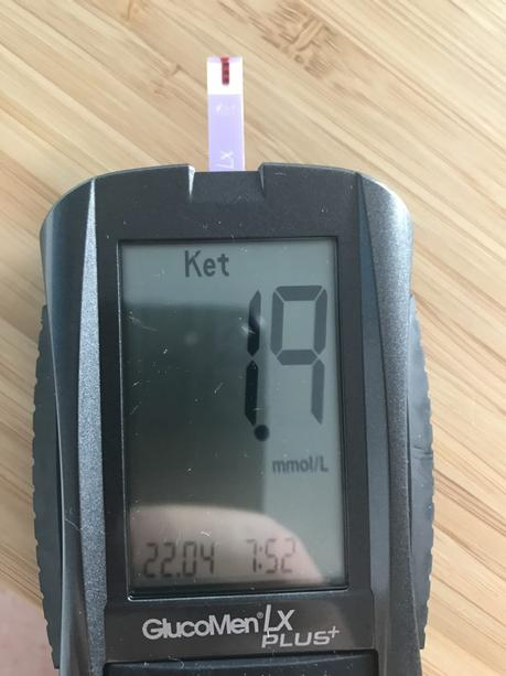Why You're Not in Ketosis