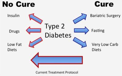 Towards a Cure for Type 2 Diabetes