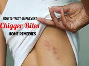 Treat Prevent Chigger Bites: Home Remedies