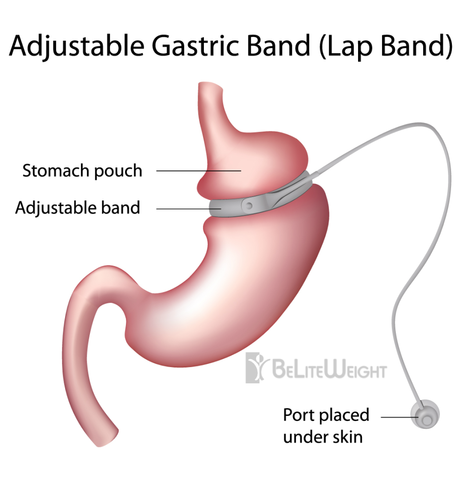 Lap Band Gastric Sleeve Byp A History Of Weight Loss Surgery