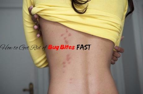 Bug Bites Home Remedies