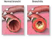 Case COPD Preventable Lung Disease