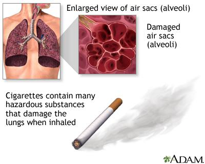 Case of COPD ( Preventable Lung Disease )