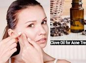 Clove Acne: Effectively?