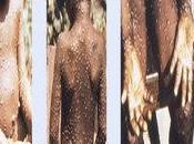 Medical Doctor Others Confirmed with Monkeypox Disease Bayelsa
