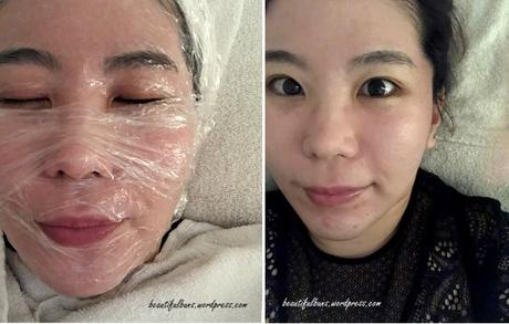 Review: Removing milia seeds with CO2 Laser, Clear and Brilliant Laser at SL Clinic