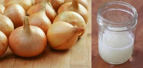 Essential Health & Beauty Benefits Of Onions You Must Be Knowing!