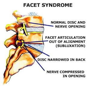 Could Your Back Pain Be Caused by Facet Joint Syndrome?