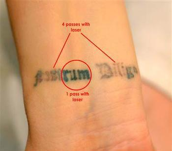 R20 Tattoo Removal