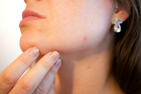 Surefire Ways to Quickly Get Rid of Pimples Before That Big Event