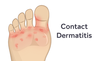 diagnose-prevent-treat-contact-dermatitis