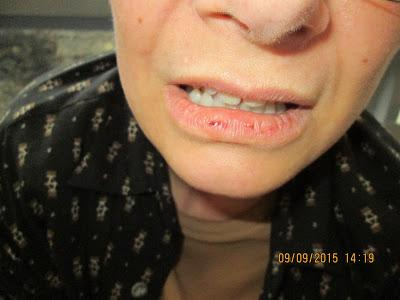 Photograph shows Carol's split lip, likely the result of cop slamming her to the ground, and helps prove deputies are lying about the cause of her broken arm