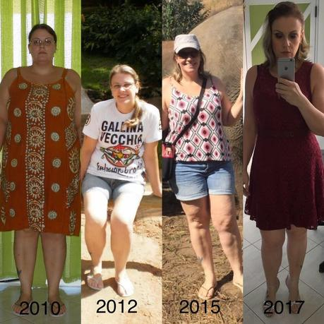 The keto diet: The savior after regaining weight after bariatric surgery