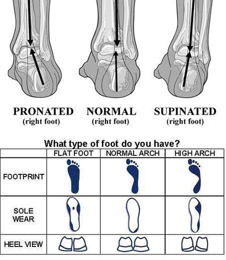 Foot Type Chart - Pronation, Neutral, Supination