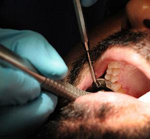 Dentist Pulls All Of Ex-Boyfriend's Teeth Out After Getting Dumped