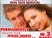 What Skin Tag?