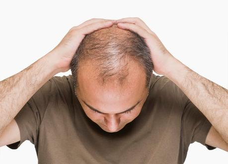 Male pattern baldness caused by elevated insulin?