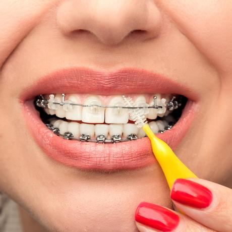 3 Must-do routines while you wear braces!