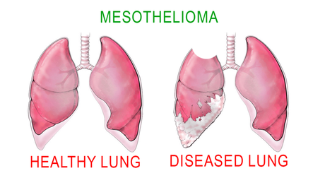 Ayurvedic Approach for Mesothelioma – Symptoms & Causes
