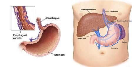 Herbal Remedies for Esophageal Varices – Symptoms and Causes