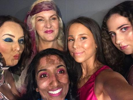 Interview with Sylvia Mac, founder of the Love Disfigure campaign, which was born out of a passion to raise awareness and support for those living with a disfigurement.