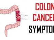 Stage Colon Cancer Symptoms Colorectal