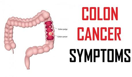 Stage 4 Colon Cancer Symptoms Colorectal Cancer Paperblog
