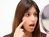 Home Remedies Dark Circles Causes