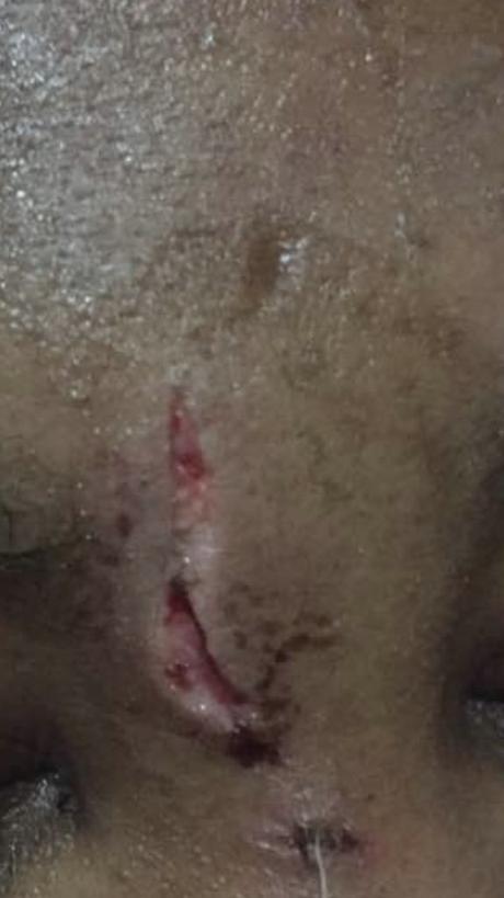 Bowen Uni Graduate @OyebanjiToluwa2 Batters His Girlfriend, Machetes her Neck (See Photos)
