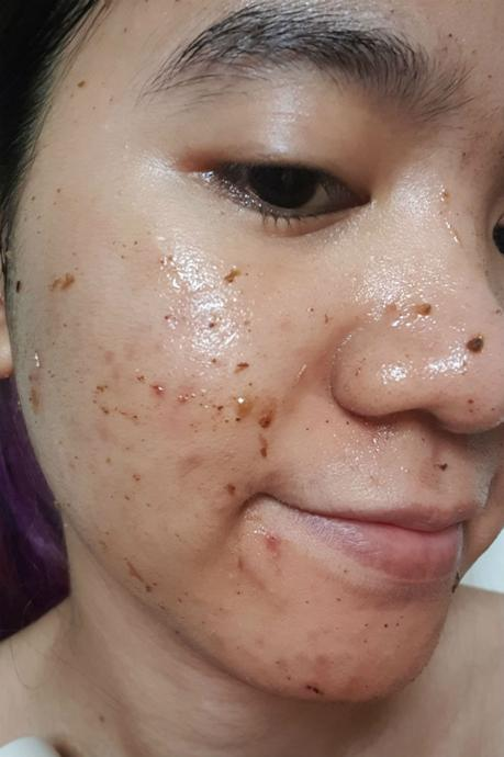 Keep Your Acne & Pimples at Bay: I'm From Mugwort Mask Review