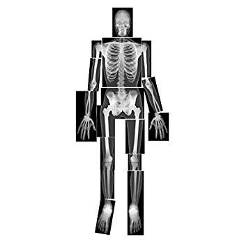 image relating to Printable X Rays called November 8th Is (Features Printable Freebies) - Paperblog