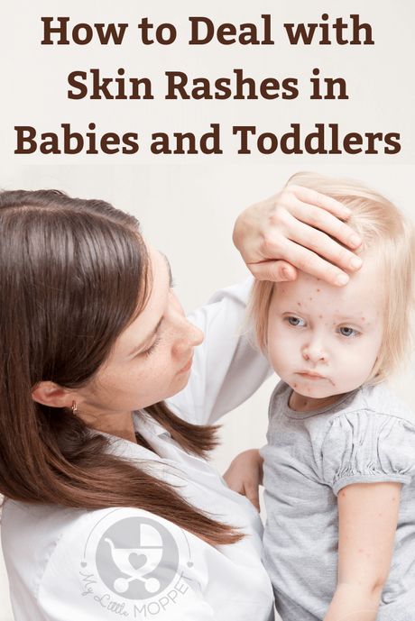 Seeing a rash pop up on your baby's delicate skin can be distressing for you and your baby. Here is a guide to deal with skin rashes in babies and toddlers.