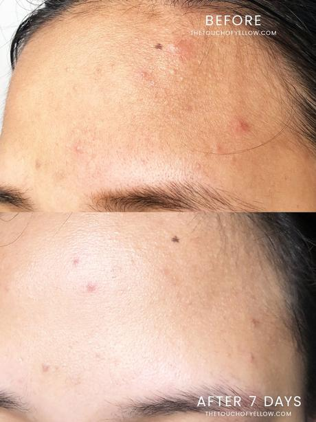No More Red Bumps with Centellian 24 Madeca Derma Cream