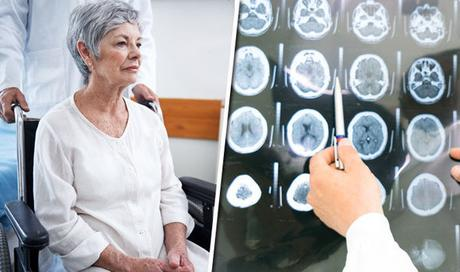 What is the best treatment for Alzheimer's Disease?