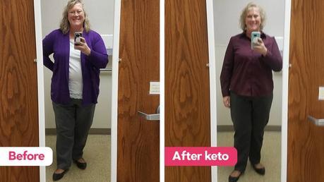 Regina did keto instead of bariatric surgery