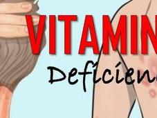 What Signs Symptoms Vitamin Deficiency?