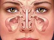 Natural Health Remedies Sinusitis