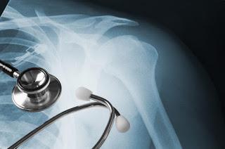 Bone Dislocation, Orthopedists in Kolkata
