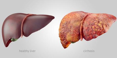 How Ayurveda Treat Liver cirrhosis with Diet & Herbal Remedies