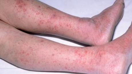 How Meningitis can be treated naturally