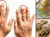 Treat Arthritis Pain Naturally?Types,Symptoms Natural Treatment