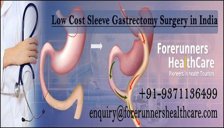 Sleeve Gastrectomy Surgery in India – Save Money While Staying Safe