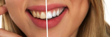 Natural Tips for Teeth Whitening