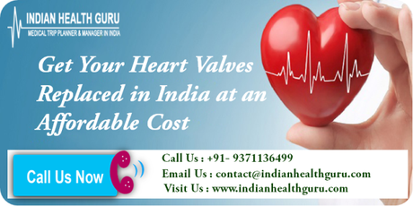 Get Your Heart Valves Replaced in India at an Affordable Cost