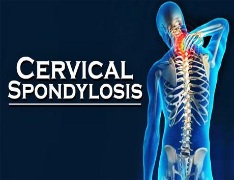 How to Treat Cervical Spondylosis with Ayurveda